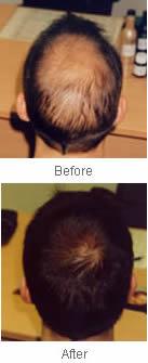 hair loss wellington